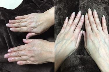 hand.gazou